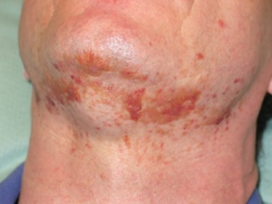 Skin rash in AL amyloidosis