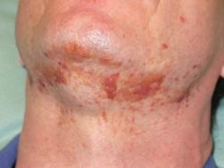 Skin rash in AL amyloidosis