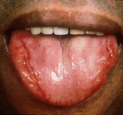 Macroglossia - enlarged tongue, sometimes with bite marks in AL amyloidosis