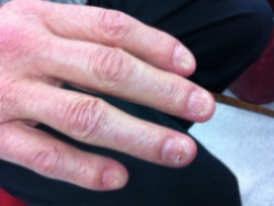 Nail changes in AL amyloidosis