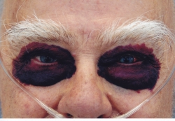 raccoon eyes a sign of AL amyloidosis
