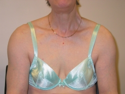 swelling of shoulders due to amyloid deposits in the soft tissue around them