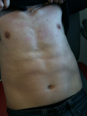 The patient shown in the picture above, showing how the rash disappeared after  treatment with canakinumab,