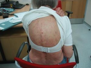 Schnitzler Syndrome - WebMD